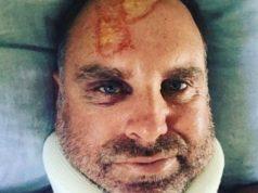 Matthew Hayden injured