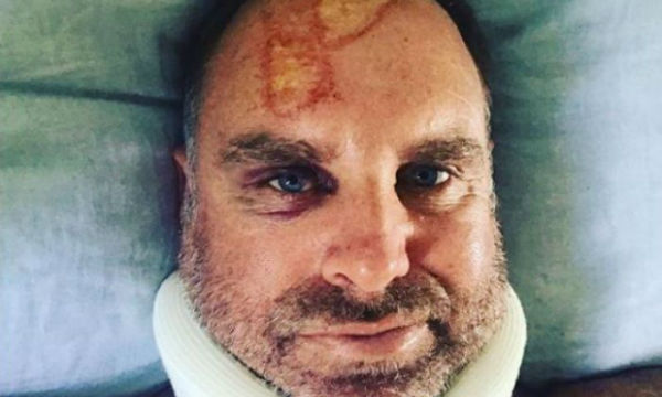 Matthew Hayden injured