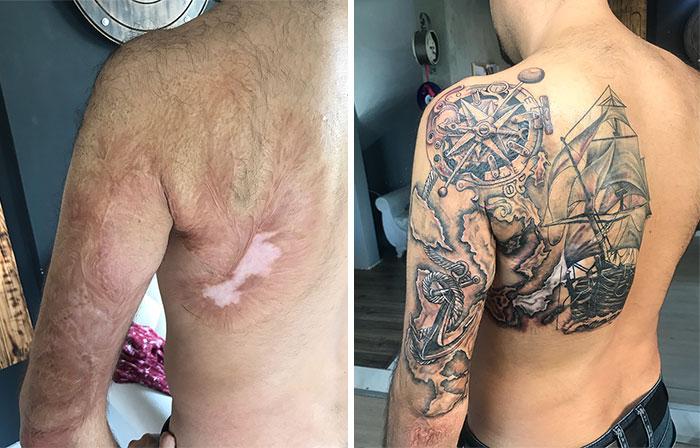 Birthmarks Looks Beautiful with tattoo art