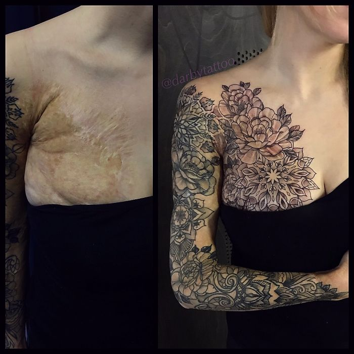 Birthmarks Looks Beautiful with tattoo art